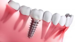 implantes dentales cunident 2